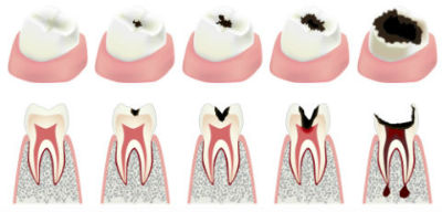 Dr. Shroff | Dolton, IL Dentist | Root Canal Therapy